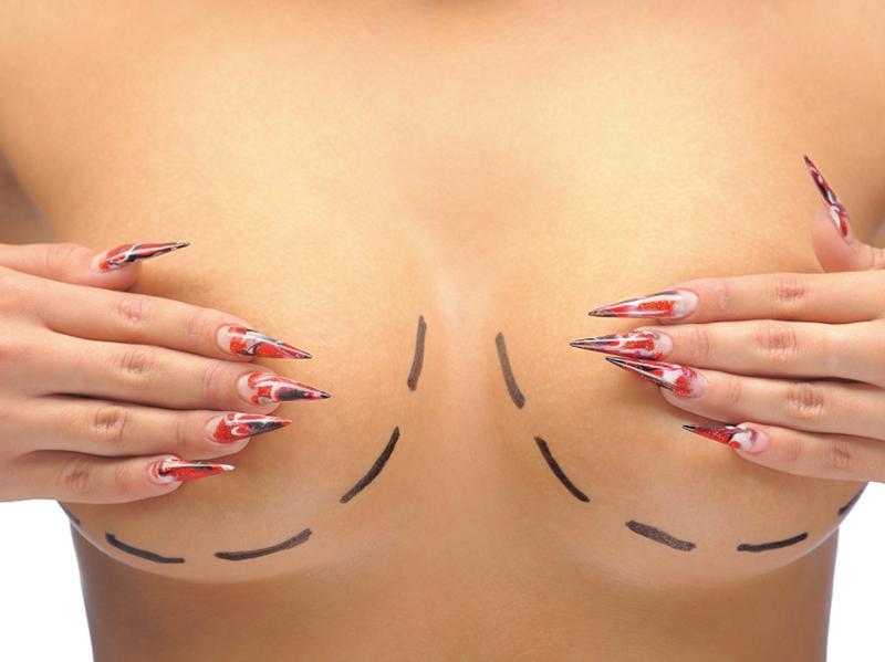 Влияние формы груди на маммопластику