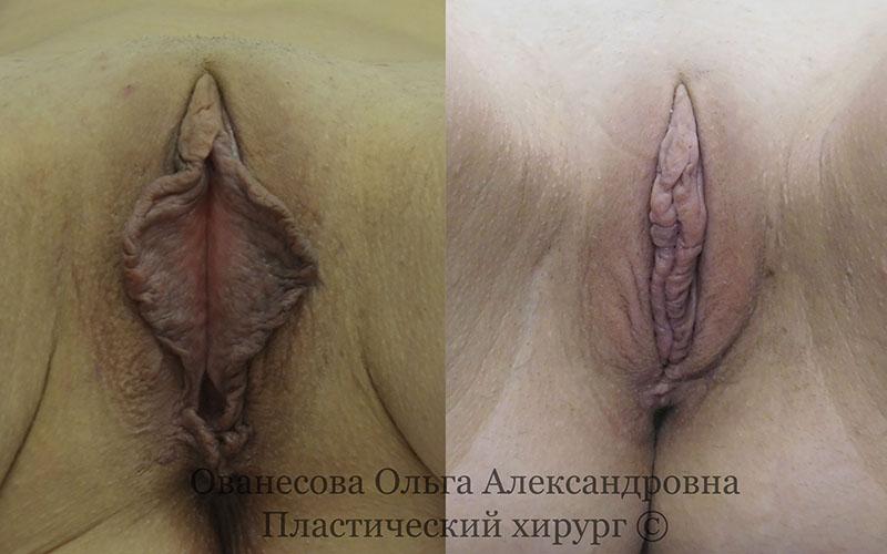 Клиника оливия интимная пластика запорожье